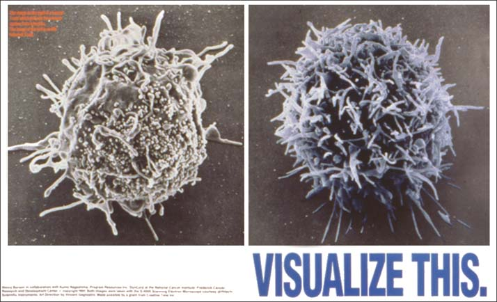 <p><em>Visualize This</em>, 1991 (The image on the right is a normal T-Cell which defends the immune system from infection. The image on the left is an HIV infected T-Cell.  This poster was distributed by the Gay Men's Health Crisis and was used as e a teaching tool in AIDS-related education programs.)</p>